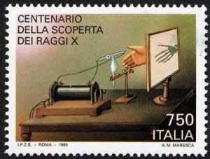 Centenario della scoperta dei Raggi X - radiografia di una mano